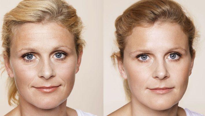 Hvad er forskellen på Botox og Restylane?