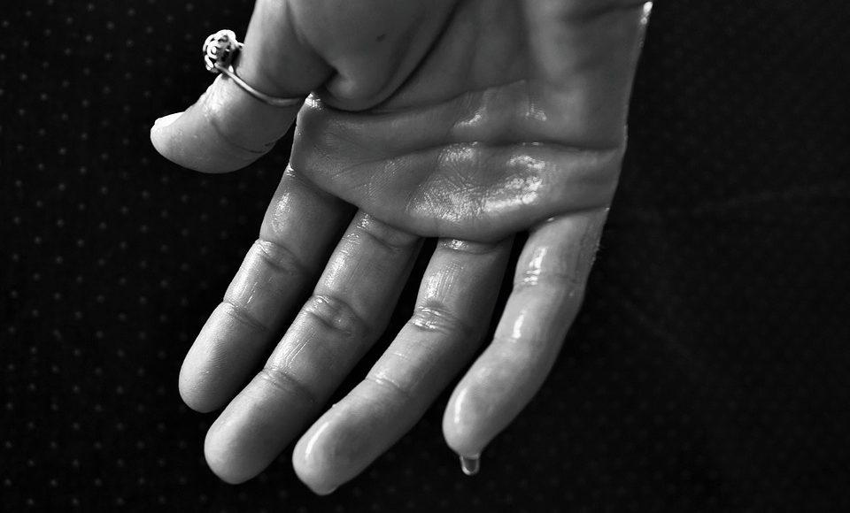 Botox hjælper dig af med dine svedige hænder