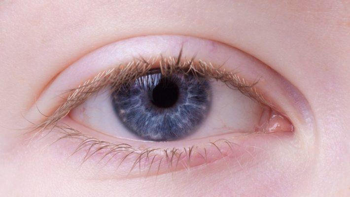 Hængende øjenlåg forsvinder på ingen tid med botox